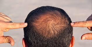مطالعه جدید نشان داد: آلاینده های رایج در هوا باعث ریزش مو و کندی رشد آن می شود