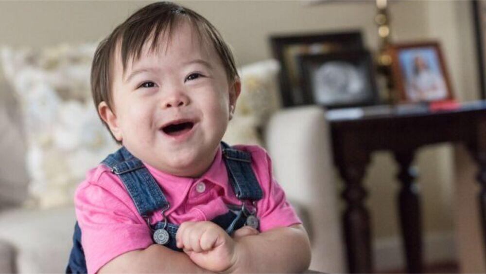 محققان کالج روماتولوژی آمریکا :کودکان مبتلا به سندرم داون در معرض آرتریت قرار دارند