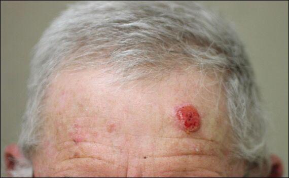 محافظت در برابر سرطان پوست با ویروس