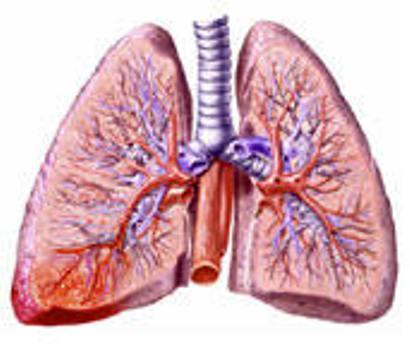 ریسک عفونی شدن ریهها درآلودگی هوا افزایش مییابد/ احتمال تبدیل عفونت ریه به ذاتالریه در اثر ابتلا به آنفلوآنزا بسیار زیاد است