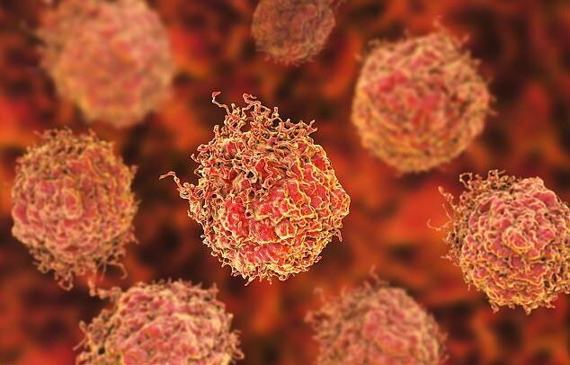 پژوهشگران دانشگاه کالیفرنیا موفق شدند:حذف تومورهای سرطانی پروستات در کمتر از یک ساعت