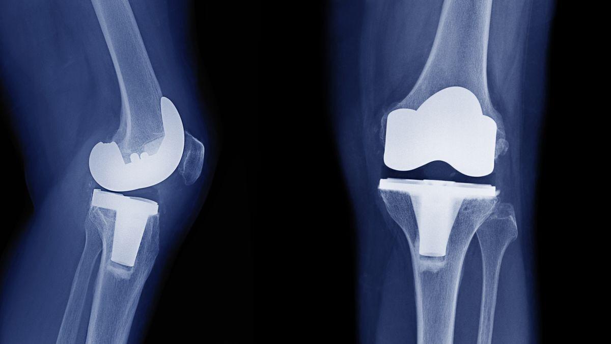 محققان دانشگاه نورث وسترن آمریکا دریافتند: تبعات جراحی و تعویض زانو در زمان نامناسب چیست؟