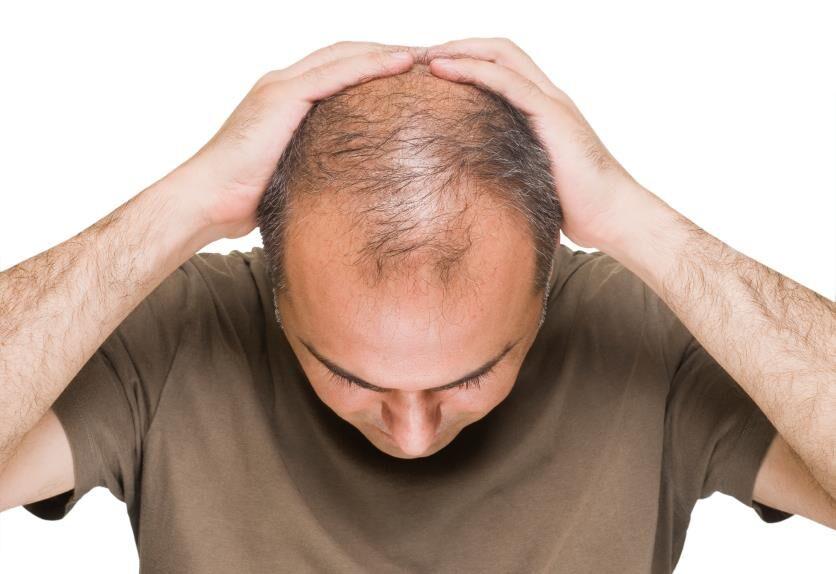 دکتر محمد ایمانی:مردم فریب تبلیغات فضای مجازی را نخورند/ درمان سریع ریزش مو یا  لک صورت