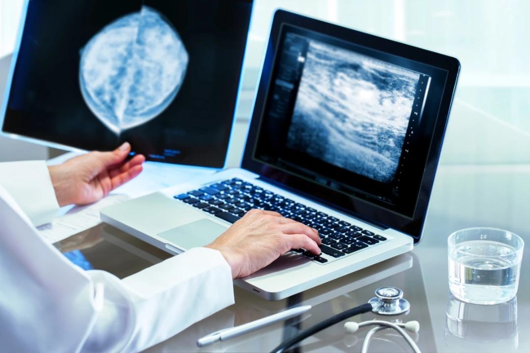 تصویب دو روش درمانی جدید سرطان سینه