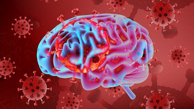 تحقیق جدید نشان می دهد؛ سکته مغزی و روان پریشی در کمین بیماران نوع شدید کووید ۱۹