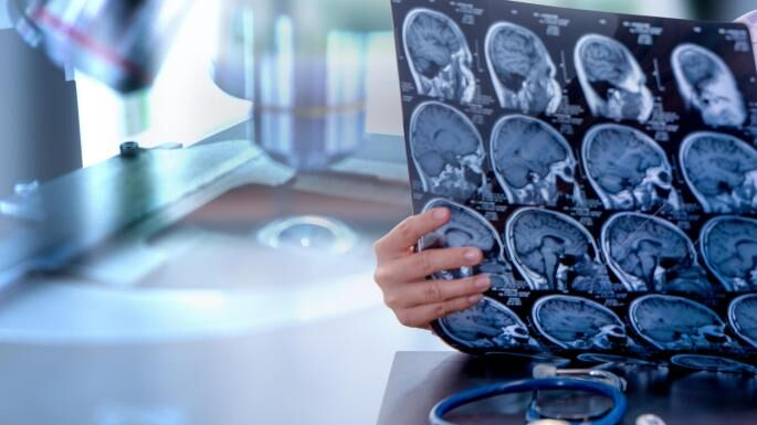 تشخیص صدمات مغزی در ۱۵ دقیقه