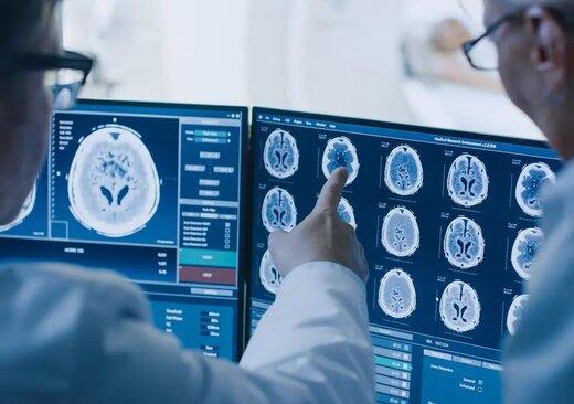 محققان: بروز عوارض مغزی ناشی از کووید ۱۹ در افراد مبتلا به فشارخون بالا و دیابت شایعتر است