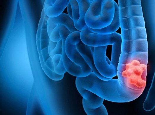 با این روش خطر ابتلا به سرطان روده بزرگ را کاهش دهید
